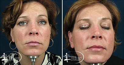 Botox Before and After Patient Reston VA