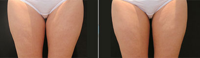 CoolSculpting Before and After Reston VA
