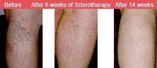 Sclerotherapy After 6 Weeks | Sclerotherapy After 14 weeks Reston VA