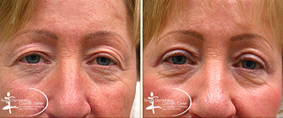 Eyelid Surgery Before and After Reston VA