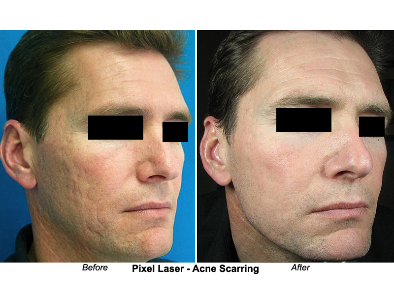 Acne Before And After Botox Before And After Reston Va