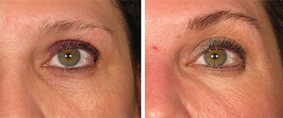 Ultherapy Before and After Reston VA