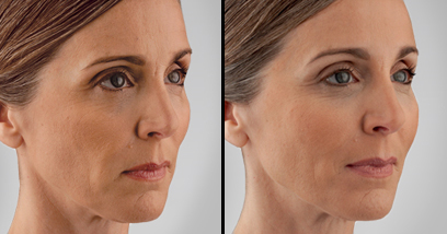 Juvederm Voluma Before and After Picture Reston VA
