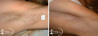 Laser Hair removal Before and After Reston VA
