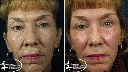 Laser Resurfacing Before and After Reston VA