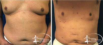 Liposuction Before and After Reston VA