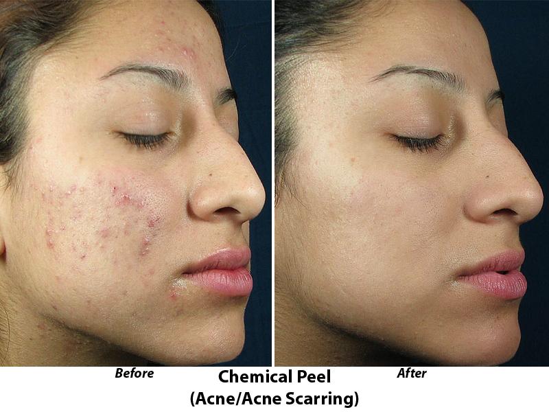 Facial peel acne
