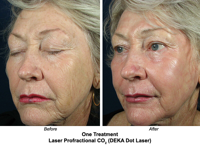 Eyelid Surgery Before And After Laser Resurfacing Before