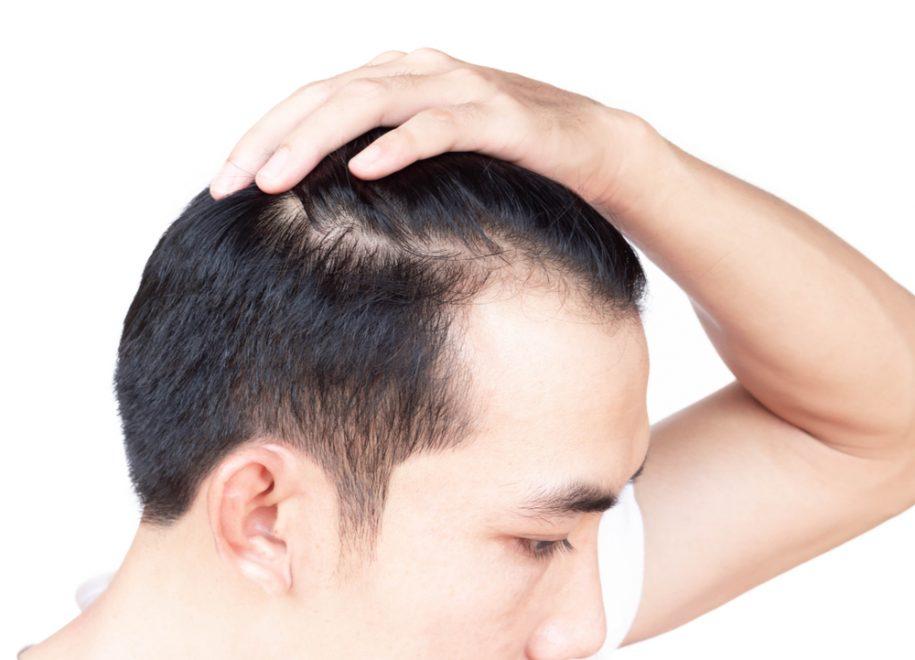 Hair Loss in Northern Virginia