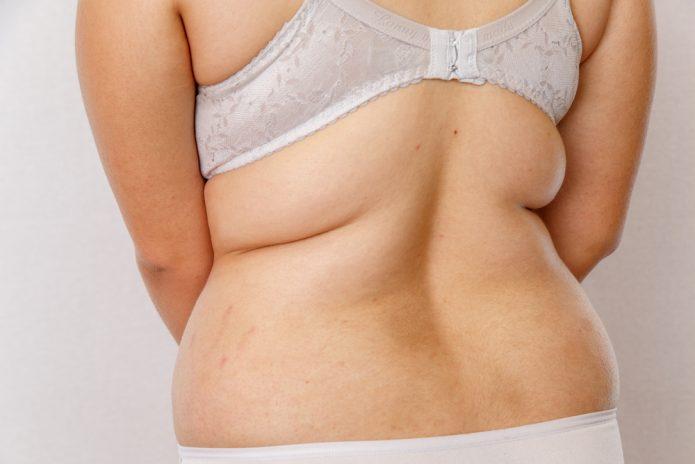 Kybella Bra Fat