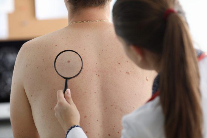 Cosmetic Mole Removal