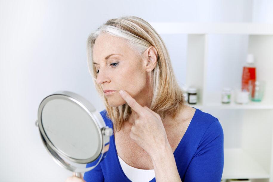 Filler or Botox for Marionette Lines