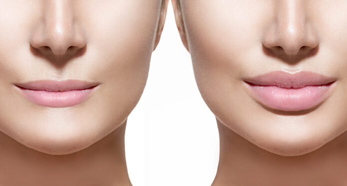 Thin Lips Treatment