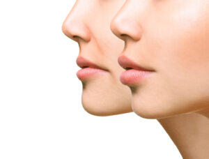 best lip filler near me
